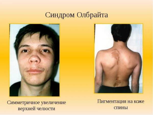 Синдром Олбрайта – симптомы и лечение, фото и видео.