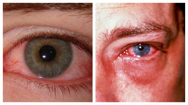Электроофтальмия – симптомы и лечение, фото и видео