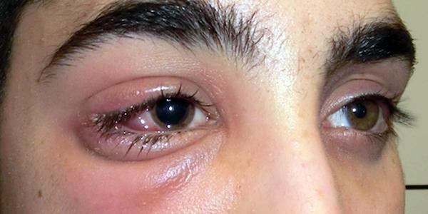 Дакриоаденит – симптомы и лечение, фото и видео