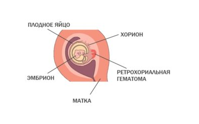 Ретрохориальная гематома – симптомы и лечение, фото и видео
