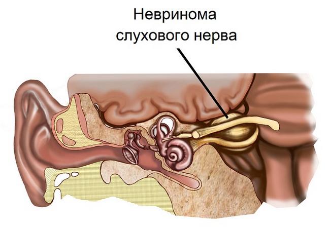 Невринома слухового нерва – симптомы и лечение, фото и видео