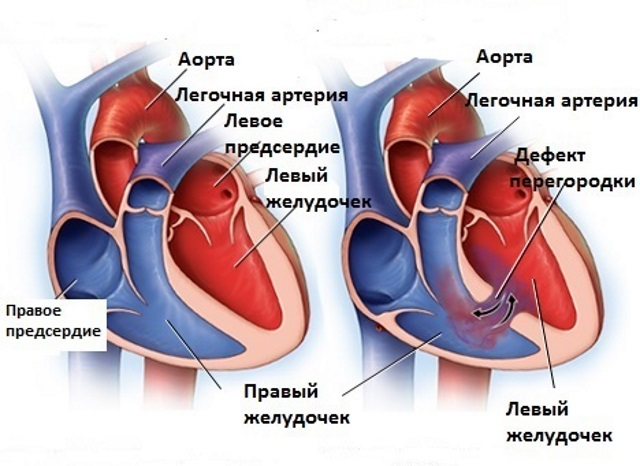 Дефект межжелудочковой перегородки – симптомы и лечение, фото и видео