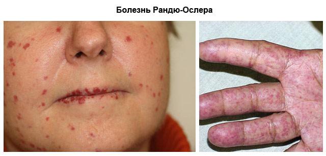 Болезнь Рандю-Ослера – симптомы и лечение, фото и видео