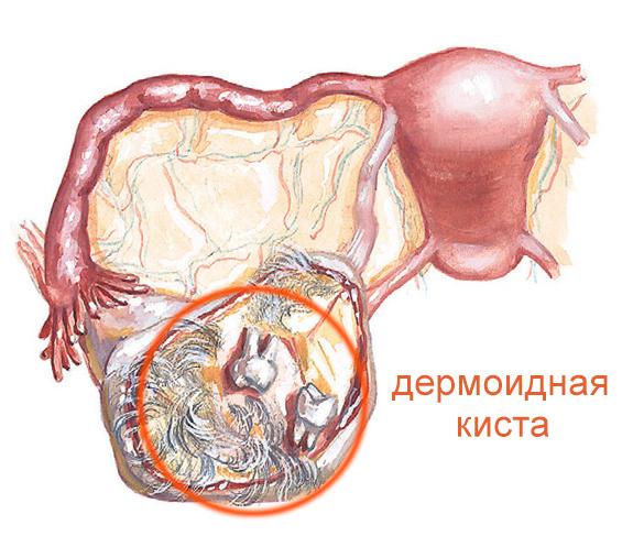 Дермоидная киста яичника – симптомы и лечение, фото и видео