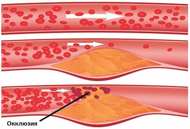 Окклюзия артерий – симптомы и лечение, фото и видео