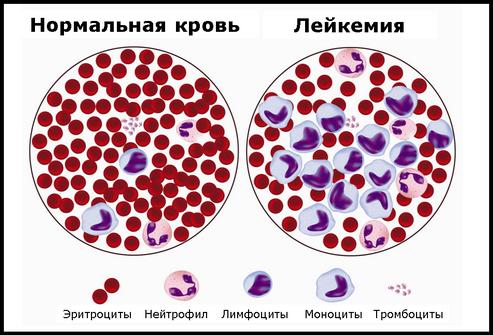 Гемобластозы – симптомы и лечение, фото и видео