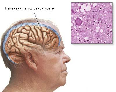 Болезнь Крейтцфельдта-Якоба – симптомы и лечение, фото и видео