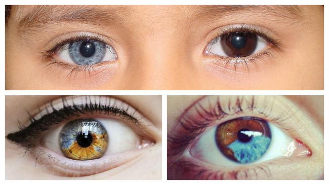 Гетерохромия глаз – симптомы и лечение, фото и видео