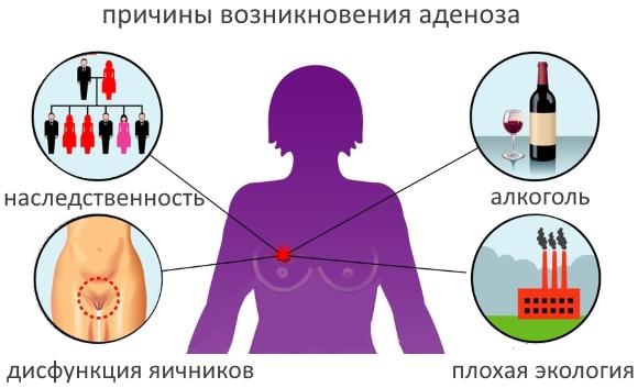 Аденоз молочной железы – симптомы и лечение, фото и видео