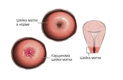 Карцинома шейки матки – симптомы и лечение, фото и видео