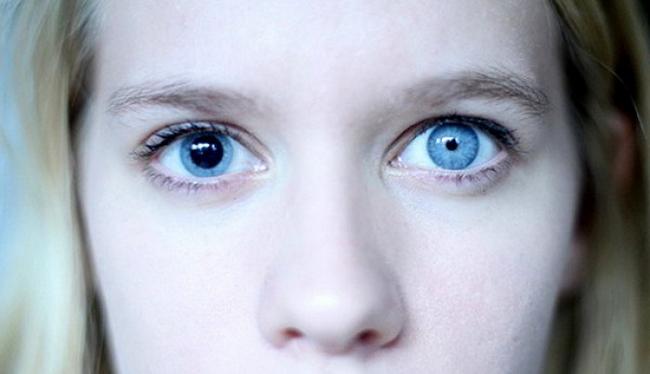Анизокория – симптомы и лечение, фото и видео