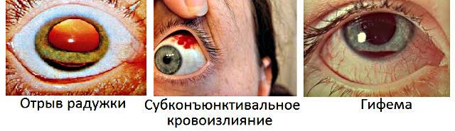 Контузия глаза – симптомы и лечение, фото и видео