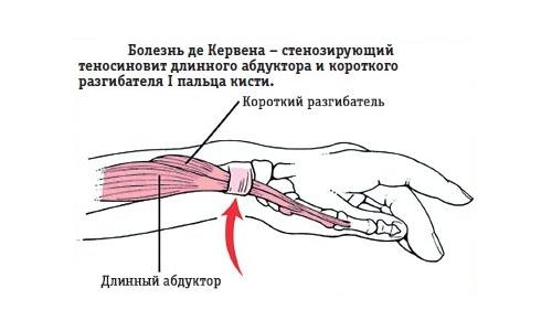 Болезнь де Кервена – симптомы и лечение, фото и видео