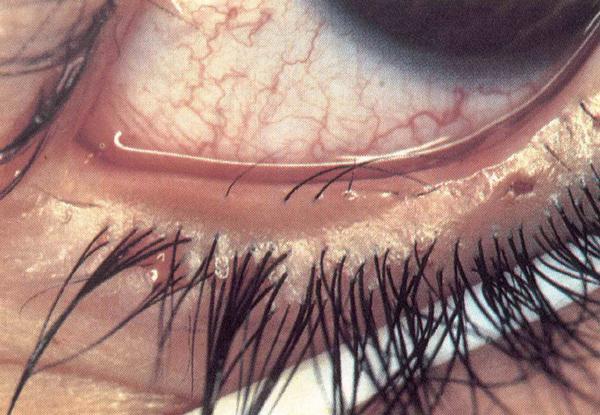 Дистихиаз – симптомы и лечение, фото и видео