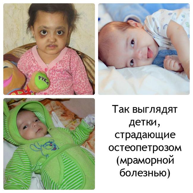 Остеопетроз – симптомы и лечение, фото и видео