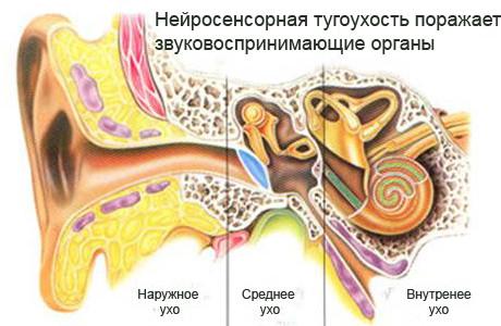 Нейросенсорная тугоухость – симптомы и лечение, фото и видео