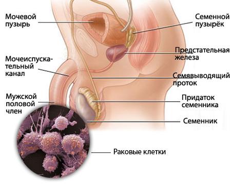 Рак полового члена – симптомы и лечение, фото и видео