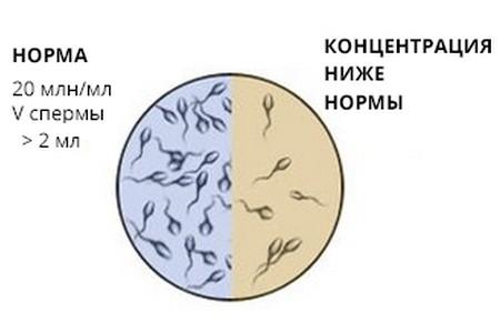 Астенозооспермия – симптомы и лечение, фото и видео