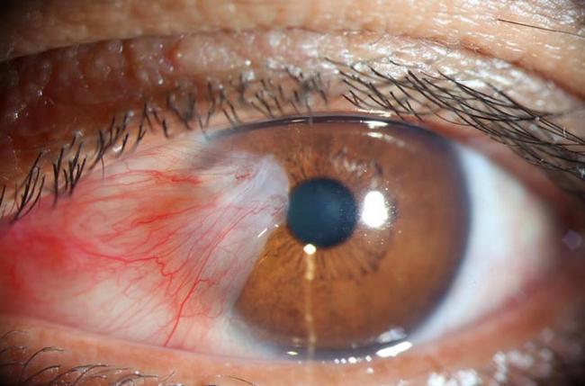 Птеригиум – симптомы и лечение, фото и видео