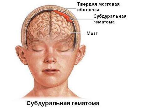 Субдуральная гематома – симптомы и лечение, фото и видео