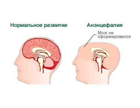 Анэнцефалия – симптомы и лечение, фото и видео
