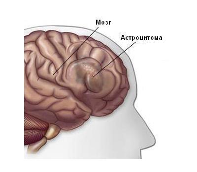 Астроцитома – симптомы и лечение, фото и видео