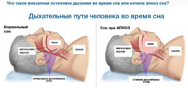 Гиперволемия – симптомы и лечение, фото и видео