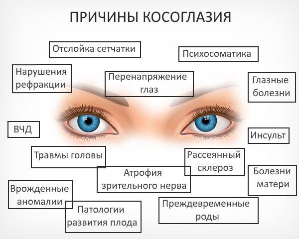 Гетерофория – симптомы и лечение, фото и видео