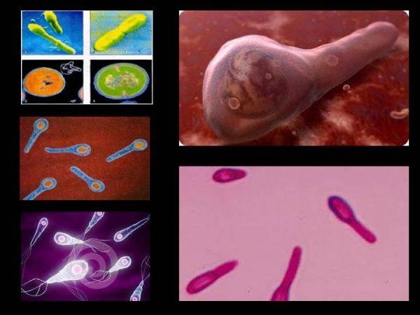 Анаэробная инфекция – симптомы и лечение, фото и видео.
