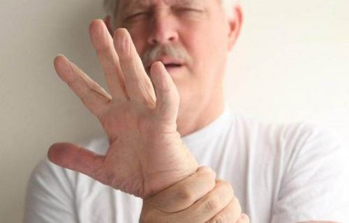 Миоклония – симптомы и лечение, фото и видео.