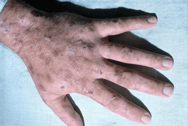 Болезнь Гюнтера – симптомы и лечение, фото и видео.