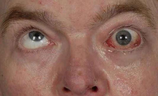 Офтальмоплегия – симптомы и лечение, фото и видео