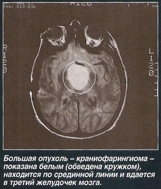 Краниофарингиома – симптомы и лечение, фото и видео