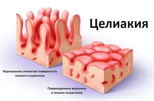Энтеропатия – симптомы и лечение, фото и видео