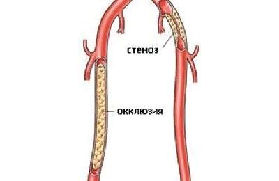 Окклюзия сосудов – симптомы и лечение, фото и видео