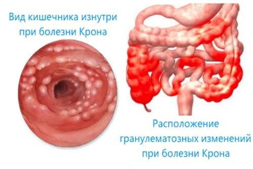 Лимфангиэктазия – симптомы и лечение, фото и видео