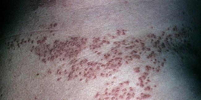 Болезнь Дарье – симптомы и лечение, фото и видео