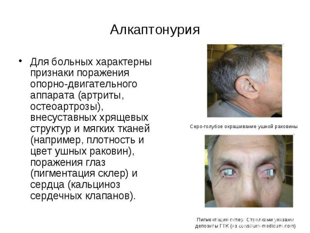 Алкаптонурия – симптомы и лечение, фото и видео