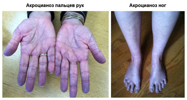 Акроцианоз – симптомы и лечение, фото и видео