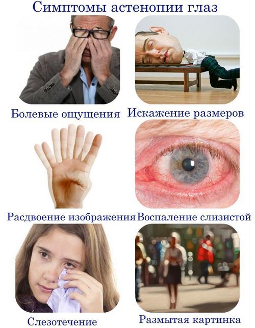 Астенопия – симптомы и лечение, фото и видео