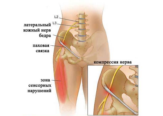 Болезнь Рота – симптомы и лечение, фото и видео
