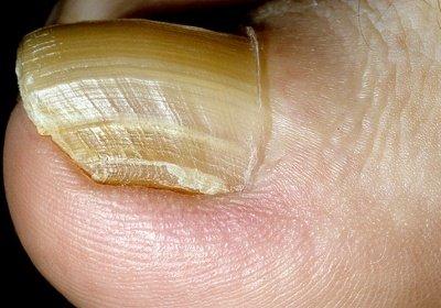 Онихогрифоз – симптомы и лечение, фото и видео