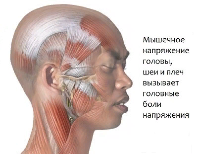 Цефалгия – симптомы и лечение, фото и видео