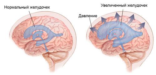 Болезнь Бинсвангера – симптомы и лечение, фото и видео