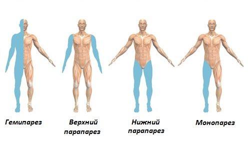 Парапарез – симптомы и лечение, фото и видео