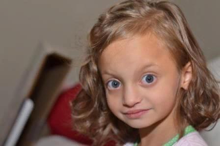 Синдром Вольфа-Хиршхорна – симптомы и лечение, фото и видео