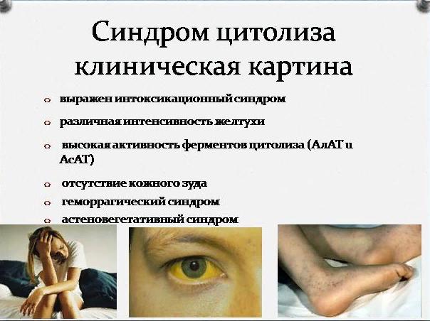 Синдром цитолиза – симптомы и лечение, фото и видео