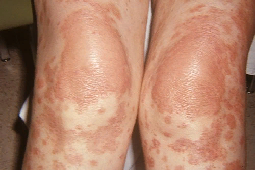 Болезнь Девержи – симптомы и лечение, фото и видео