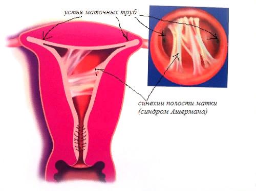 Синехии – симптомы и лечение, фото и видео