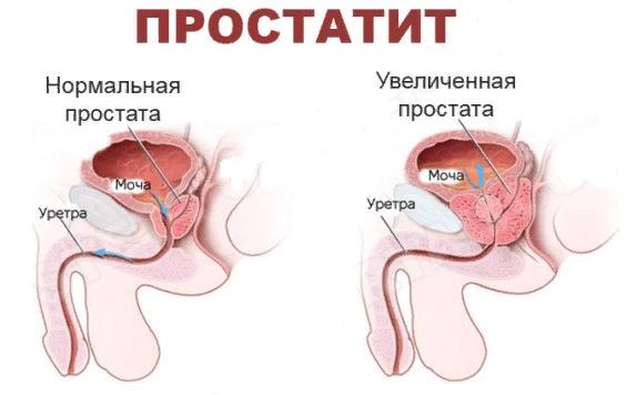 Странгурия – симптомы и лечение, фото и видео